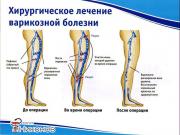 Сосудистый хирург в Алматы - Nikonov.kz Алматы