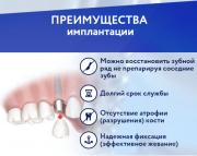 Имплантация зубов Нур-Султан (Астана)