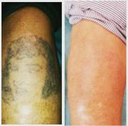 Удаление старого татуажа и тату лазером или ремувером Алматы